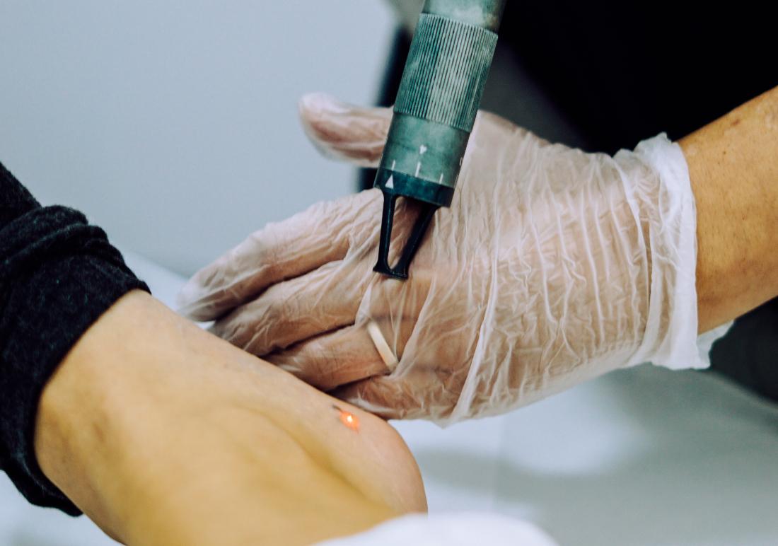 Fotografía de eliminación de tatuajes en Tatualia Chueca
