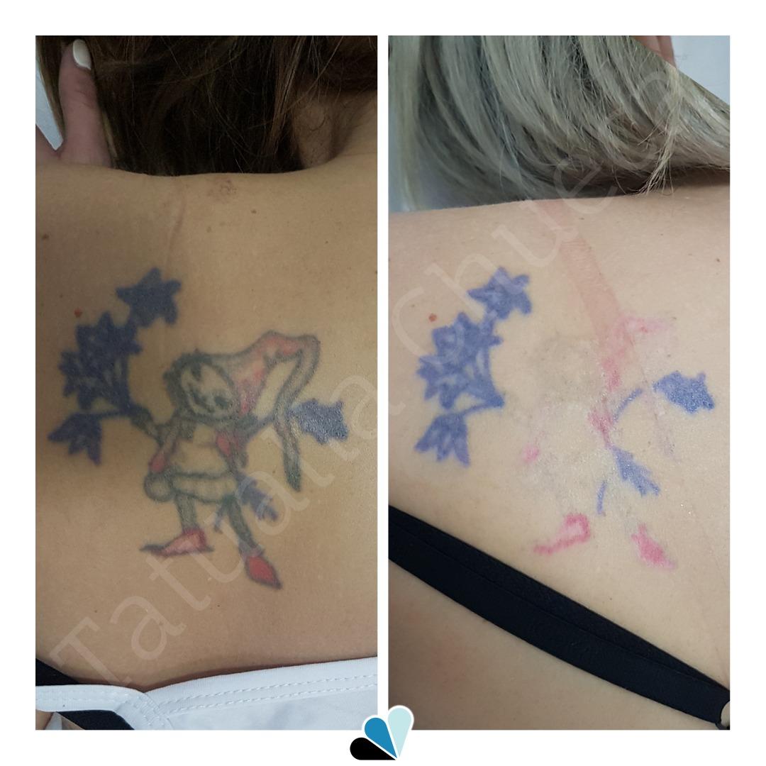 Antes y después eliminación de tatuaje a color en Tatualia Chueca 1