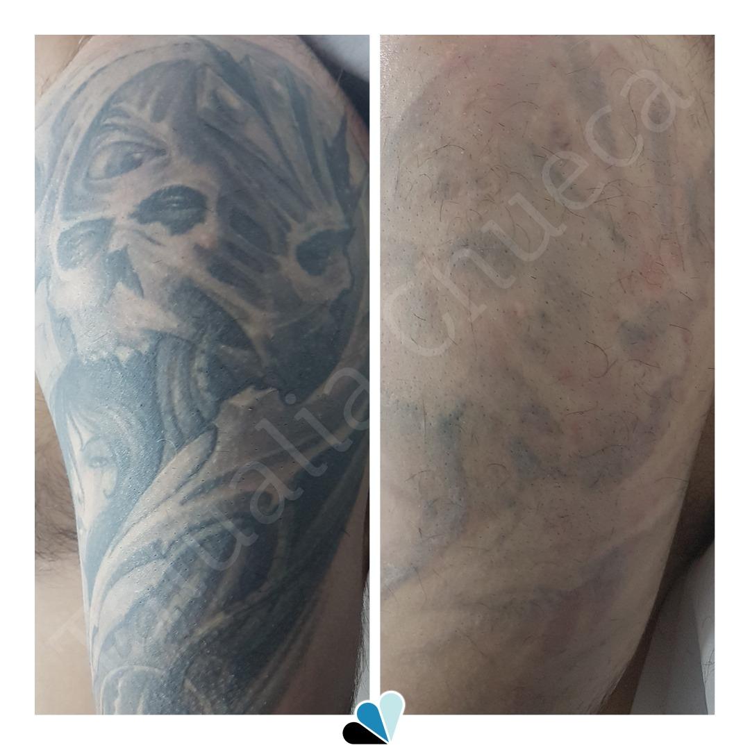 Antes y después eliminación de tatuaje en Tatualia Chueca