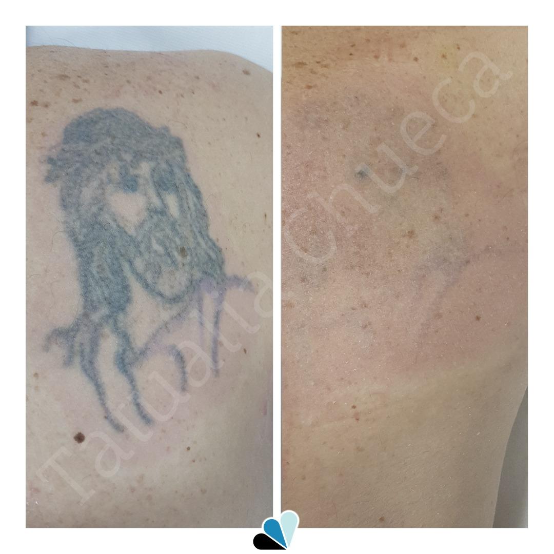 Eliminación tatuaje Tatualia Chueca Jesucristo