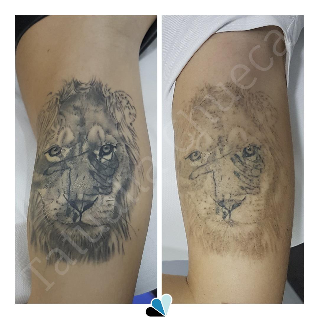 Antes_y_Despues_Eliminacion_Tatuaje_Tatualia_Chueca_Leon