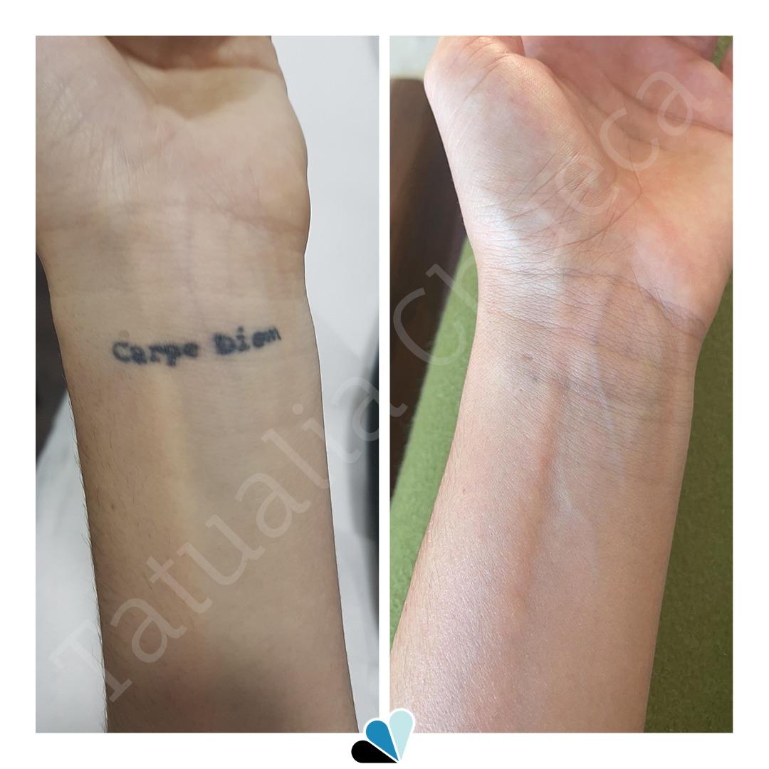 Antes y Después eliminación de tatuajes Tatualia Chueca Carpe Diem