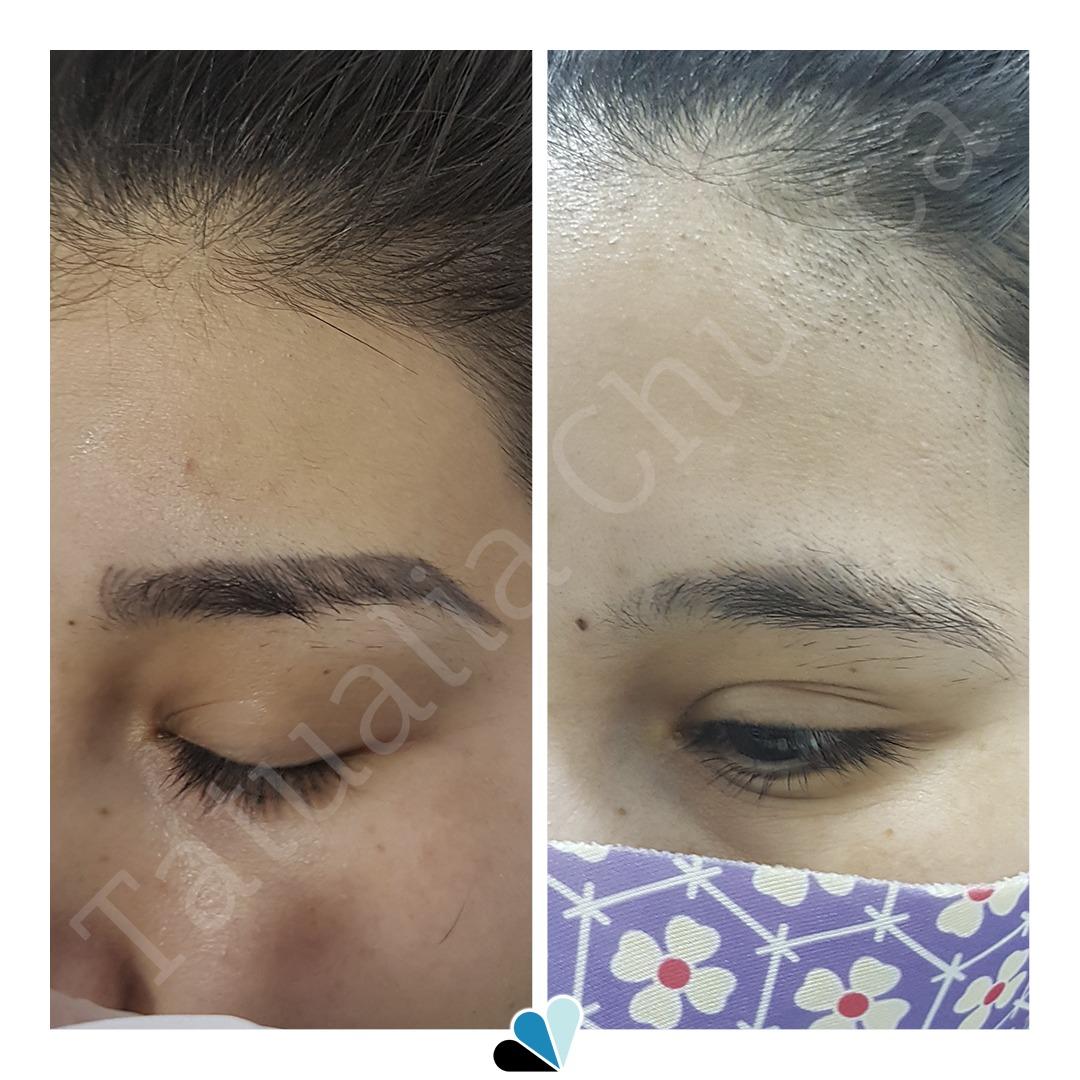 Antes y después eliminación de tatuaje en Tatualia Chueca Microblading Cejas