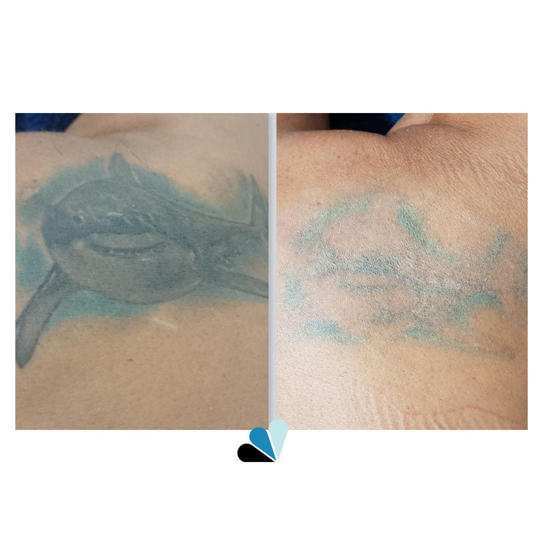 Antes y Después Eliminación de tatuajes Tatualia Chueca Tiburón