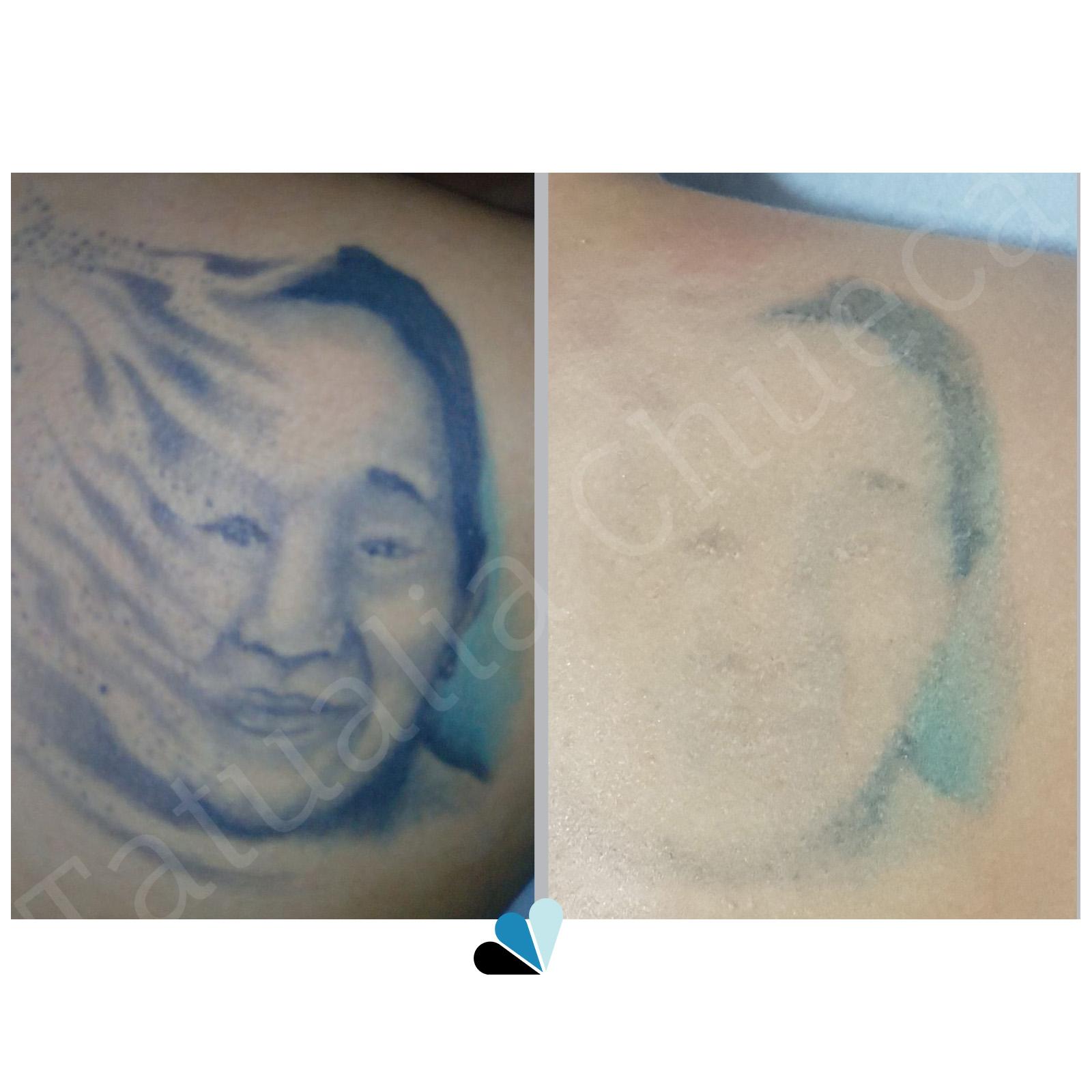 Antes y después eliminación de tatuaje en Tatualia Chueca Cara Azul