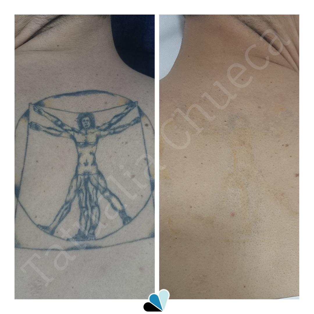 Antes y después eliminación de tatuaje en Tatualia Chueca Vitruvio