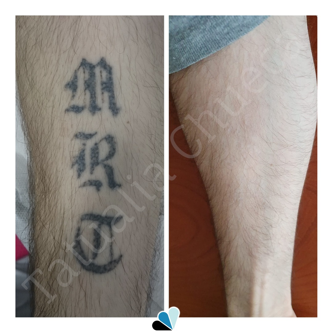 Antes y después eliminación de tatuaje en Tatualia Chueca de unas letras