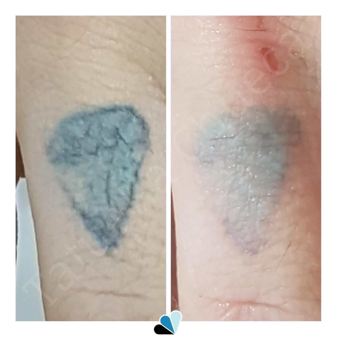 Antes y después eliminación de tatuaje a color en Tatualia Chueca Diamante
