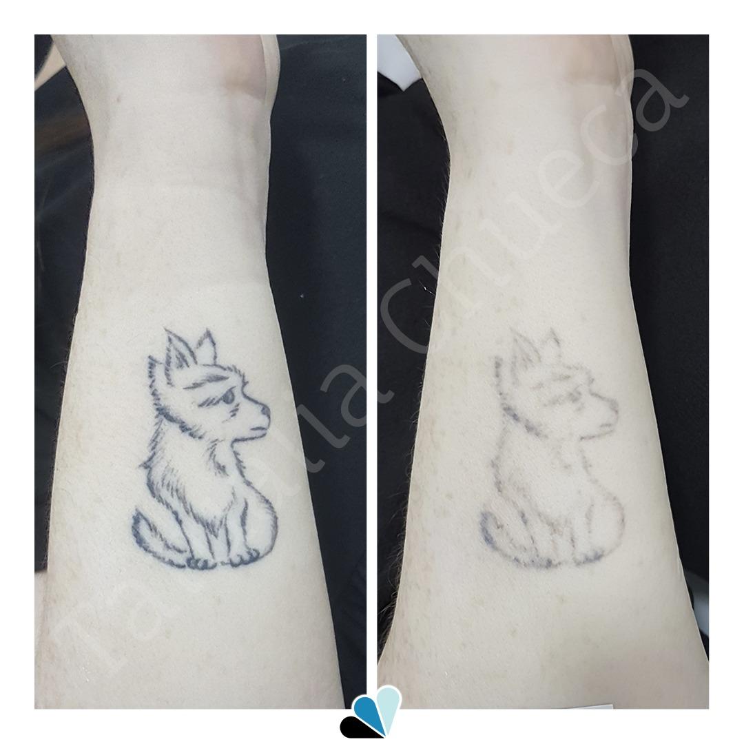 Antes y después eliminación de tatuaje negro en Tatualia Chueca silueta perro