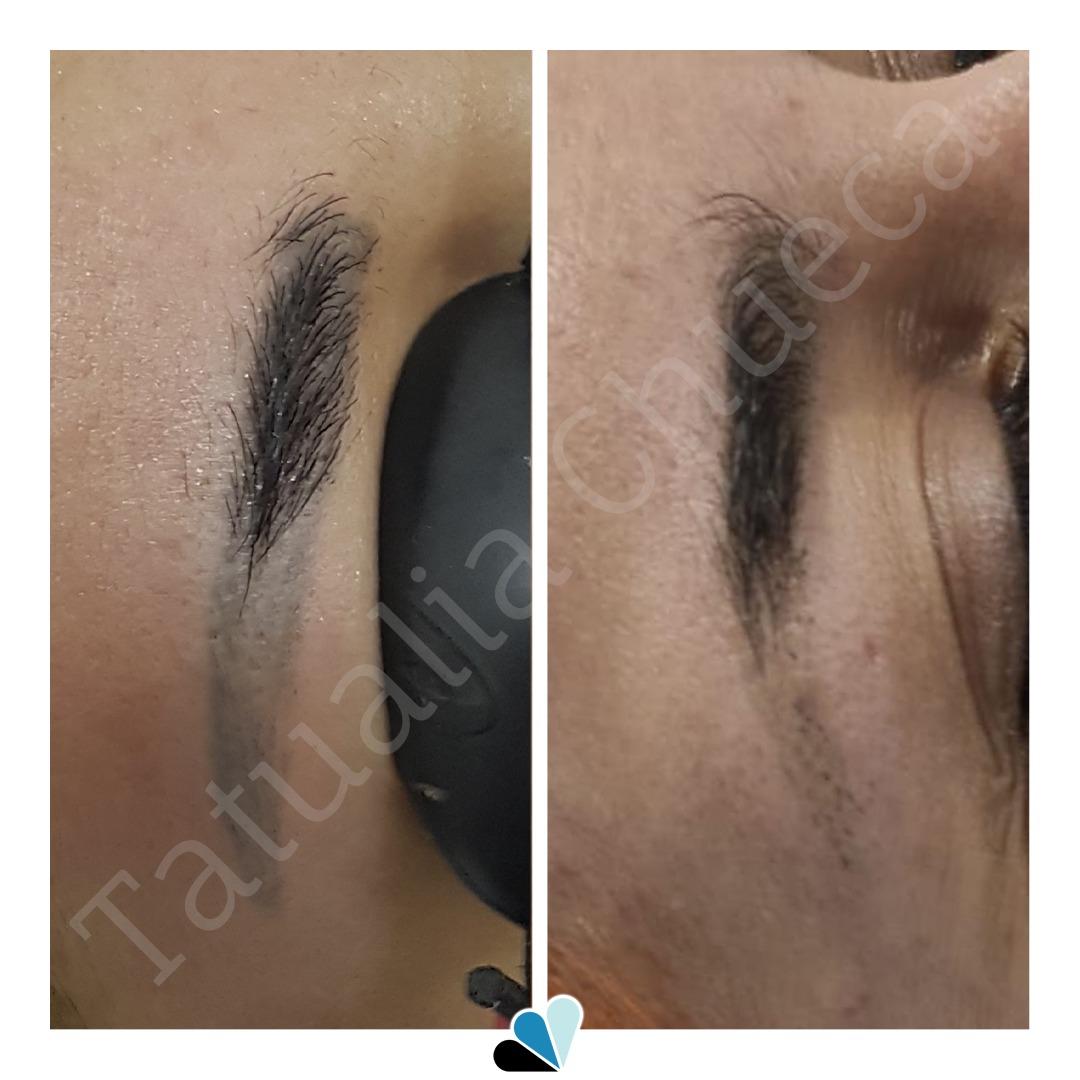 Antes y después eliminación de tatuaje cejas en Tatualia Chueca